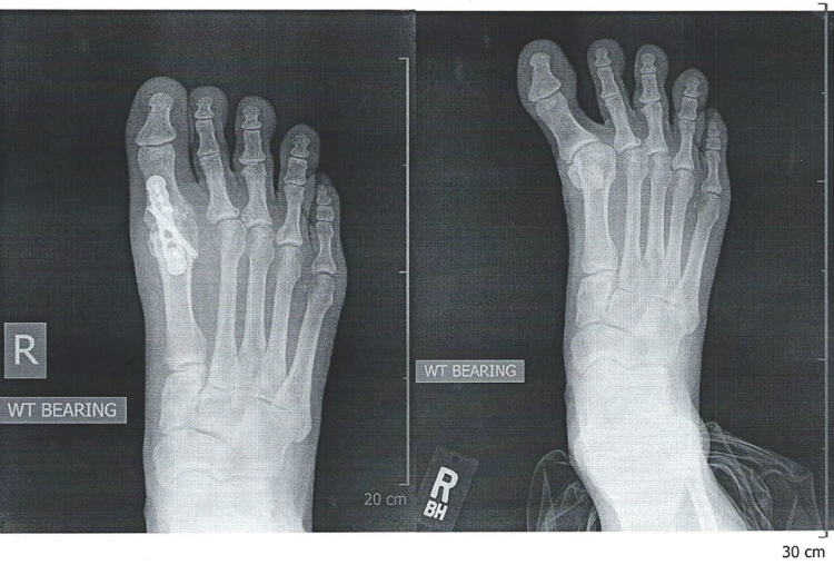 Hallux Varus treatment in Encinitas