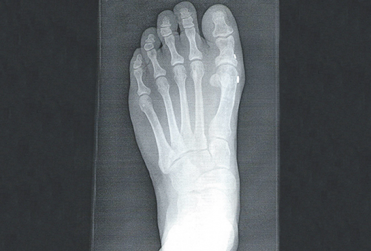 Hallux Varus surgery in Carlsbad and Encinitas