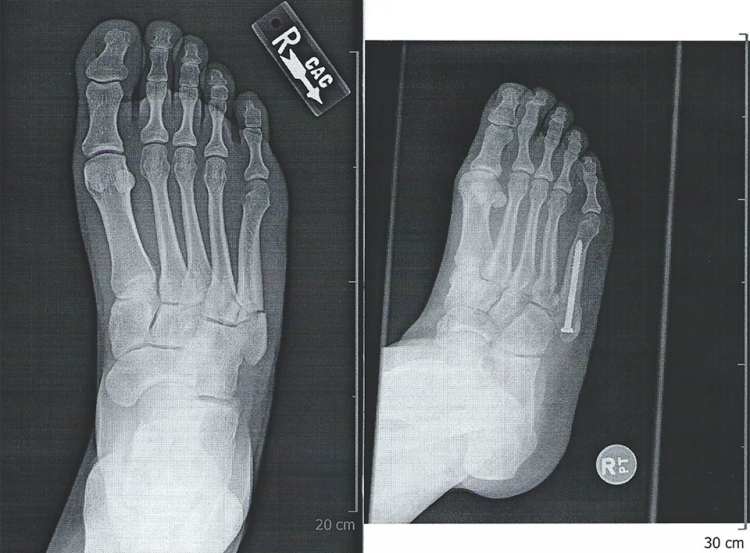 Jones fracture non-surgical treatment in Encinitas